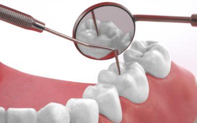 Mundhygiene Tipps